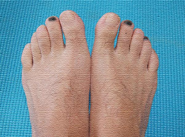 登山、トレラン、ランニングでの黒爪予防<爪下血腫>